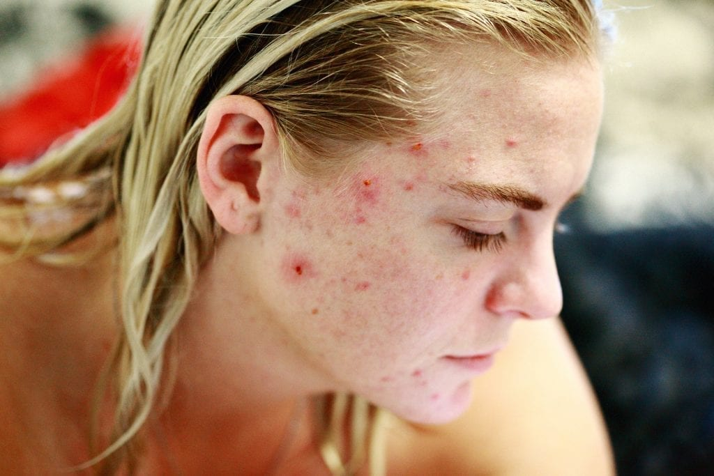 acne, disbiosi